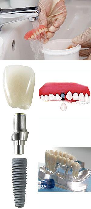 Eine unangenehme Vorstellung: Je älter man wird, desto mehr verlieren die Zähne an Substanz, bis sie schließlich ins Wackeln kommen und am Ende ganz ausfallen. Mit dem Ergebnis, dass nur noch eine Prothese aushelfen kann.