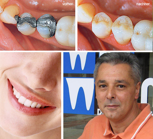 Nicht jeder Mensch hat von Natur aus ästhetische, gesunde Zähne. Und mit zunehmendem Alter nehmen Zahndefekte auch noch zu: In Deutschland haben von den 35-40-Jährigen nur noch 0,8 Prozent ein naturgesundes Gebiss.